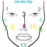 What Your Break Outs Are Telling You: Acne Face Mapping
